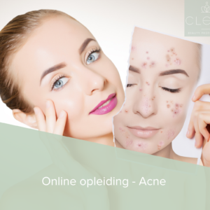 Online acne